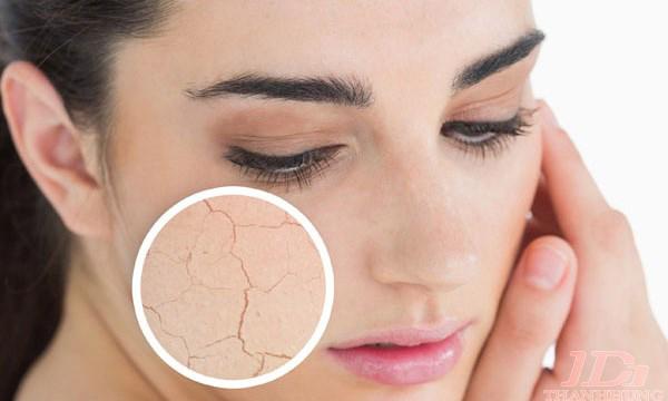 Cách chữa trị da khô, nứt nẻ vào mùa đông cực tốt