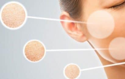 Phương pháp hiệu quả giúp khắc phục da khô tróc vảy
